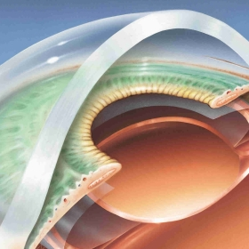 Lente intraocular: plano de saúde deve custear? Entenda!