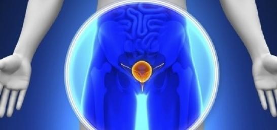 Hifu - Câncer de próstata