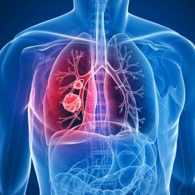 Crizotinibe para câncer de pulmão - Plano de saúde e SUS devem fornecer medicamento