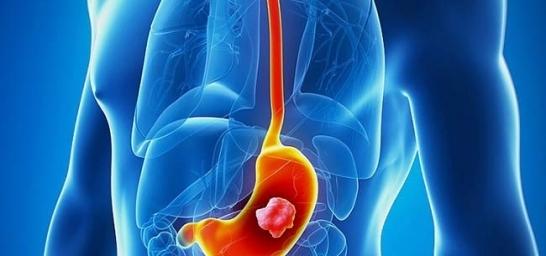 Pembrolizumabe para câncer gástrico: plano de saúde deve tratar câncer de estômago