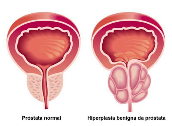embolização da prostata valor